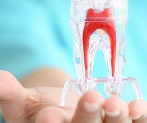 Conservativa e endodonzia