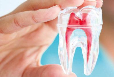 endodonzia-min