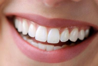 protesi-dentali-(1)