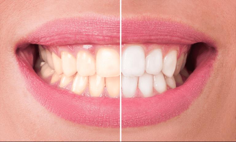 trattamento sbiancamento denti Studio Spinetto Chiavari