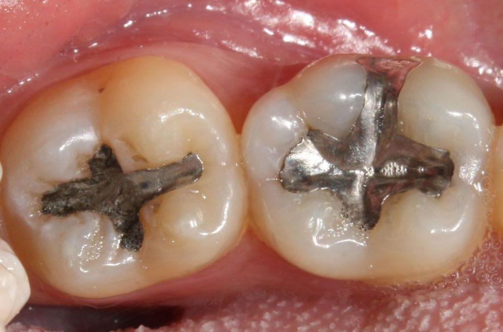 l'amalgama dentale Studio dentistico Spinetto