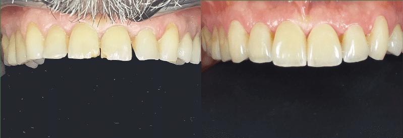le faccette dentali per un sorriso migliore, a Chiavari presso lo Studio dentistico Spinetto