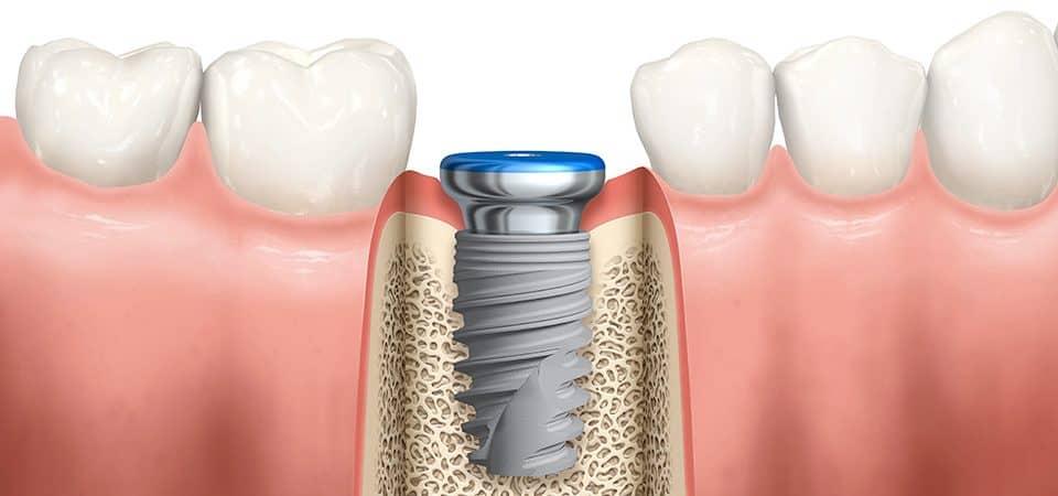 impianti dentali studio dentistico Spinetto Chiavari